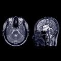 Utilità della stimolazione magnetica transcranica combinata con elettroencefalografia per lo studio della malattia di Parkinson.
