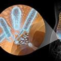 Appendice intestinale coinvolta nel Parkinson?